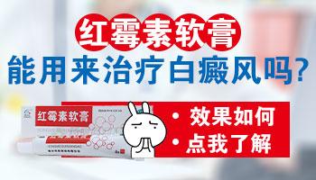 红霉素软膏对白癜风有影响吗
