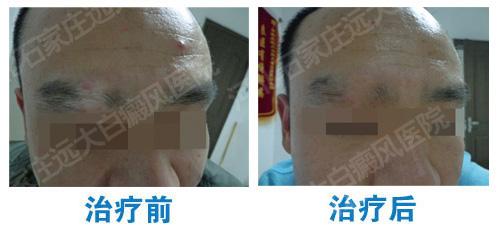 眉毛部位白癜风康复的案例图