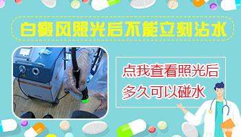 激光治疗仪治疗白癜风白斑部位能沾水吗