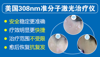 308准分子激光治疗白癜风好转的反应是痒痛吗
