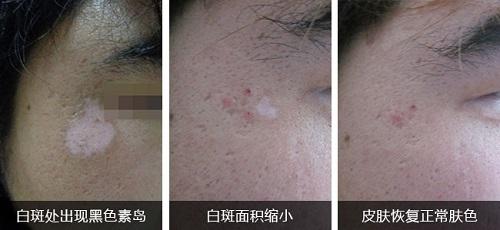 白癜风治愈过程图片