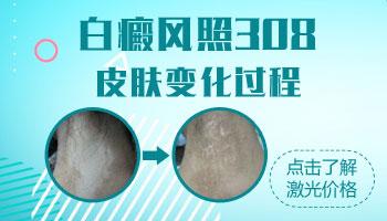 肢端型白癜风照308后皮肤变化过程