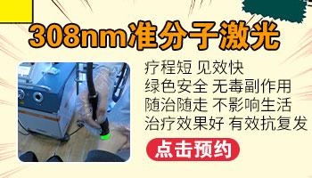 用激光治疗白癜风的副作用