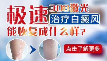 白癜风最开始图片 早期白斑的治疗方法