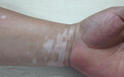 手腕上的白点今年一停药就变大了
