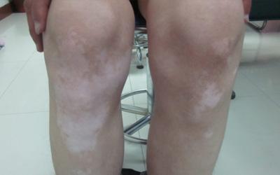 膝盖白点图片 膝盖有白点怎么回事