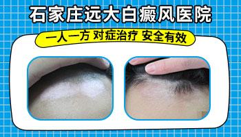皮肤白斑区基底层色素明显减少是什么意思