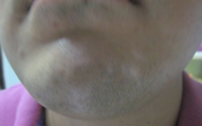 下巴上一块淡白色的白斑是什么