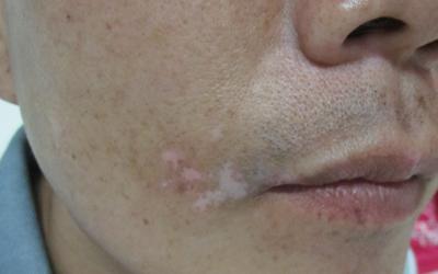 嘴唇上的白点扩散了用点什么药好