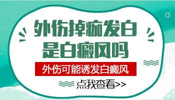 https://www.99bdf.com/jibingfenxing/131881.html