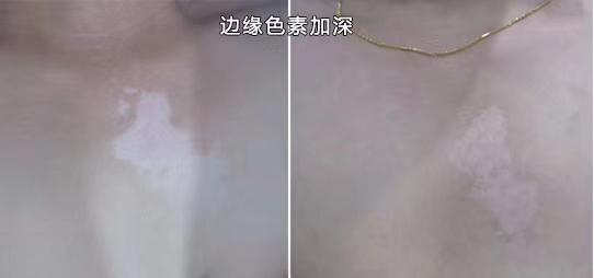 白癜风照308激光一个疗程几次 308照光后得表现和反应