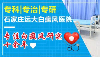 邯郸专门治白癜风白斑的医院