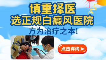 邯郸治疗白癜风最好的医院
