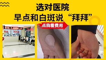 河北邯郸白癜风医院 身上长白点怎么治