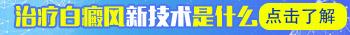 白癜风治疗 邯郸白癜风医院技术