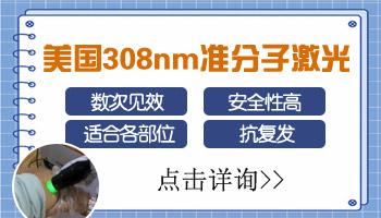 308激光治疗白斑多久是一个疗程