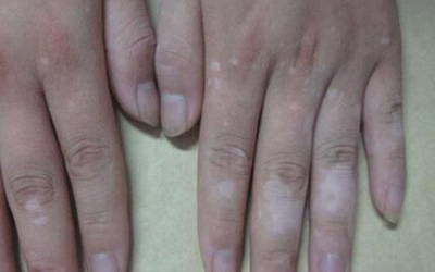 手指关节褶皱处发白是不是得了白癜风