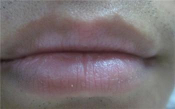 上嘴唇颜色深中间一点白是怎么回事