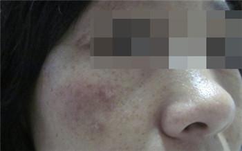 脸上晒出白点点是什么症状