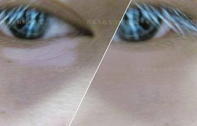 眼角白斑图片大全 眼角小白斑图片