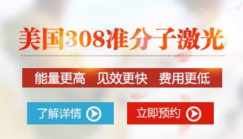 邯郸市医院有治疗白癜风的308准分子激光吗