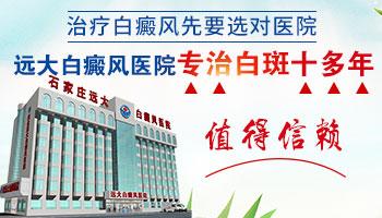 邯郸有没有只治白癜风的医院