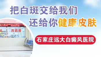 邯郸白癜风医院哪一家口碑比较好