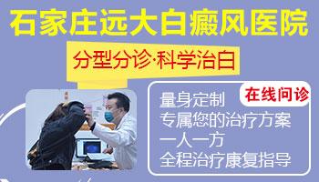 邯郸市白癜风医院治白斑的方法