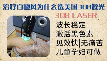邯郸医院治疗白癜风白斑收费高吗