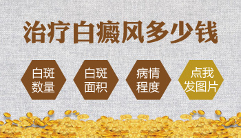 在河北邯郸治疗白斑花多少钱