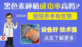 邯郸白癜风医院植皮成功率