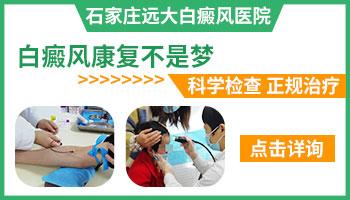 邯郸有哪几家白癜风医院
