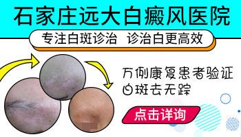 河北邯郸治疗白癜风的医院推荐