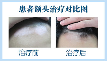 邯郸白癜风医院 白斑治疗效果图