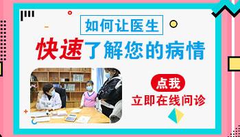 河北邯郸白癜风医院 白斑在线问诊