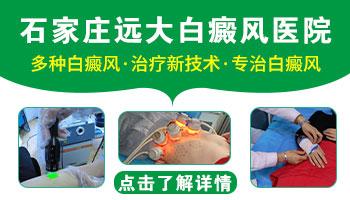 邯郸有专门治疗白癜风的医院吗