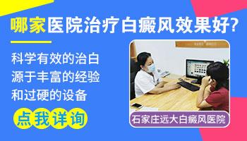 邯郸白癜风医院在线咨询
