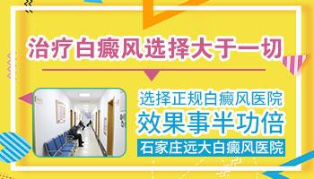 河北邯郸治疗白癜风要多少钱
