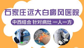 邯郸白癜风治疗 邯郸专科白癜风医院