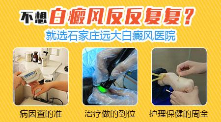 河北省中医院治疗白癜风的专家哪个好
