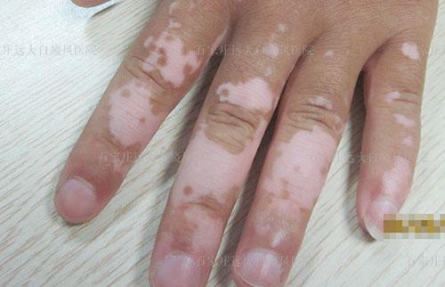 手上和脚踝处有明显的白斑四年了是什么
