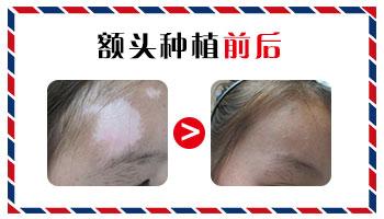 白癜风植皮手术前后的图片